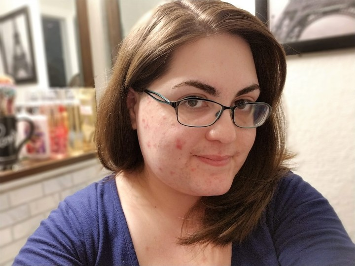 What about SkinPositivity?